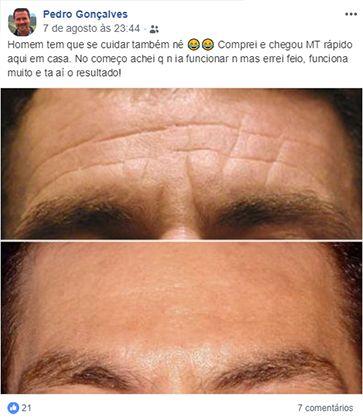 SkinCaps